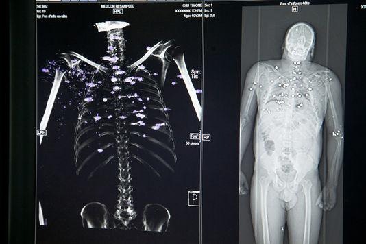 Virtopsie : L'autopsie virtuelle qui fait parler les morts