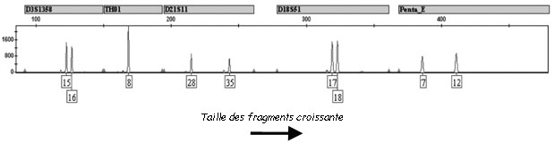 profil ADN aptès électrophorèse police-scientifique.com