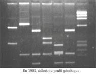 profil génétique électrophorèse
