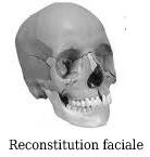 reconstitution faciale