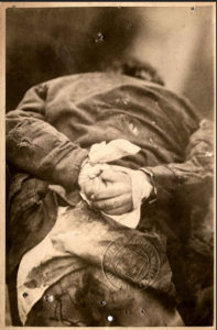 Ce cliché est celui du petit Jules Jacques Schoënen, âgé de 6 ans, assassiné le 25 février 1881. Ses mains ont été ligotées dans le dos avec un tissu blanc. Son pantalon a disparu. C'est l'une des plus anciennes photographie jointe à un dossier criminel.
