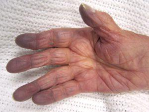 Exemple d'une cyanose des doigts