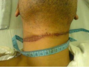Exemple d'un sillon au niveau du cou d'une victime suite à une strangulation au lien