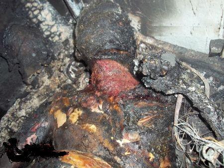 Exemple d'un corps carbonisé suite à un incendie d'appartement